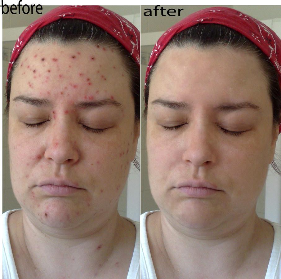 pimple_remove.kunalchauhan